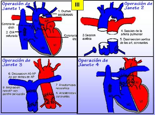 cardiopatias_congenitas/transposicion_arterias_Jatene
