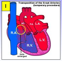 cardiopatias_congenitas/transposicion_arterias_atrioseptostomia