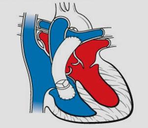 cardiopatias_congenitas/tratamiento_tronco_arterioso_comun