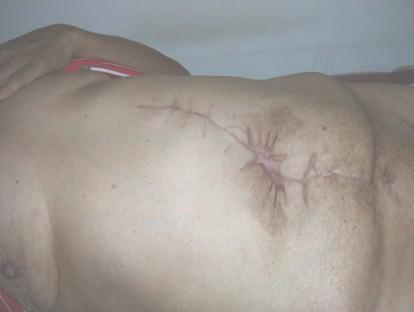 hernia_umbilical_gigante/herniorrafia_cicatriz