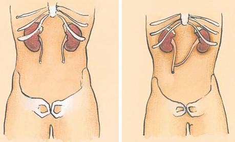 external image ureter_ureterostomia_percutanea.jpg