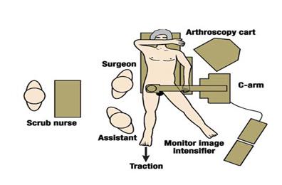 artroscopia_atrapamiento_femoroacetabular/posicion_del_artroscopio