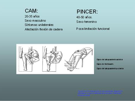 artroscopia_atrapamiento_femoroacetabular/proyeccion_para_tac