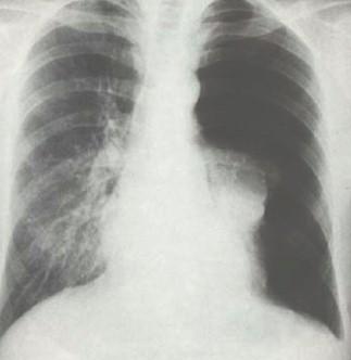 drenaje_pleural_neumotorax/rx_radiografia_torax