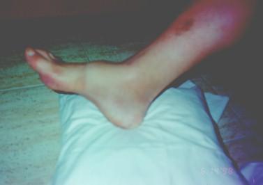 guia_basica_fisioterapia/desplazamiento_anterior_pie