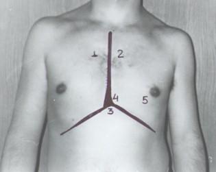 guia_basica_fisioterapia/focos_auscultacion_cardiaca