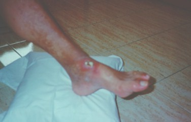 guia_basica_fisioterapia/piel_pie_diabetico