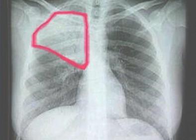 infecciones_respiratorias_agudas/neumonia_rx_radiografia