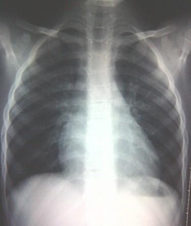 sindrome_toracico_drepanocitosis/resolucion_proceso_pulmonar