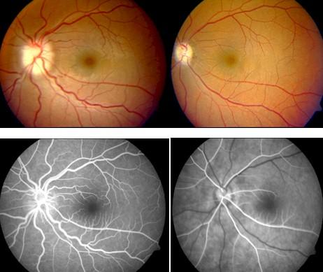 perdida_visual_liposuccion/fluoroangiografia_ojo_ocular