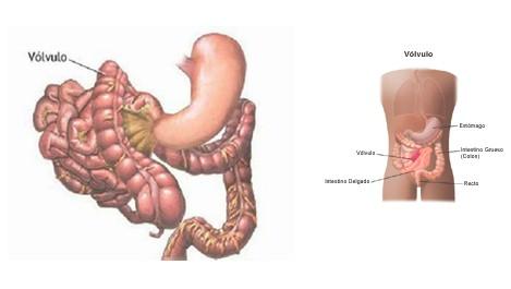 volvulus_volvulo_intestino/delgado_anatomia_cirugia