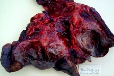 malformaciones_pulmonares_congenitas/AP_quiste_secuestro_pulmonar