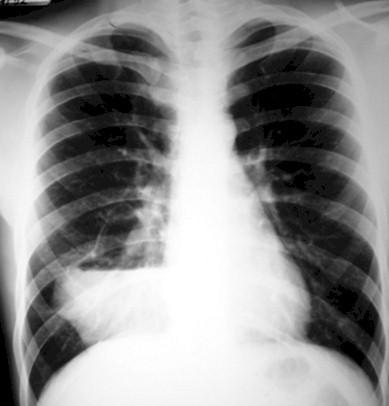 malformaciones_pulmonares_congenitas/quiste_secuestro_pulmonar