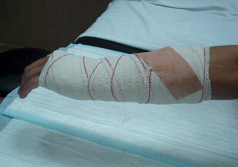 La operación varikoz en kaluge