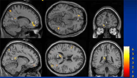 remision_depresion_tardia/circuito_limbico_AF