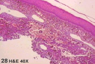 fibrohistiocitoma_maligno_vagina/FHM_FHA_histologia