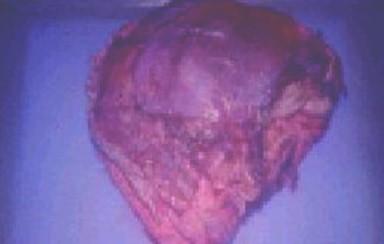 fibrohistiocitoma_maligno_vagina/imagen_macroscopica_tumor