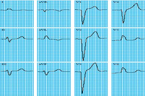 sindrome_coronario_agudo/ECG_2