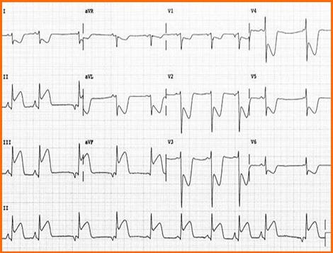 sindrome_coronario_agudo/ECG_3