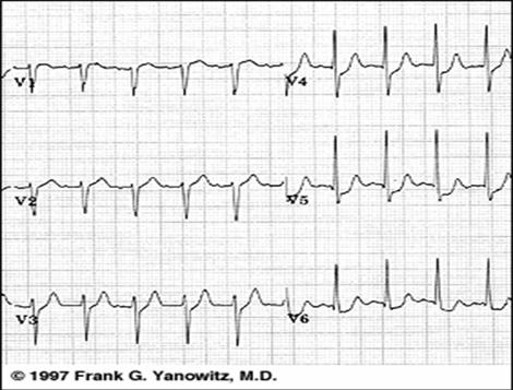 sindrome_coronario_agudo/ECG_4