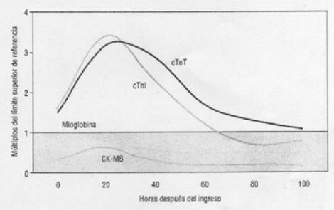 sindrome_coronario_agudo/biomarcadores_mioglobina_CK