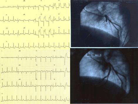 sindrome_coronario_agudo/comprobacion_angiografica_recanalizacion