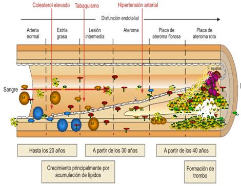 sindrome_coronario_agudo/fisiopatologia_del_SCA