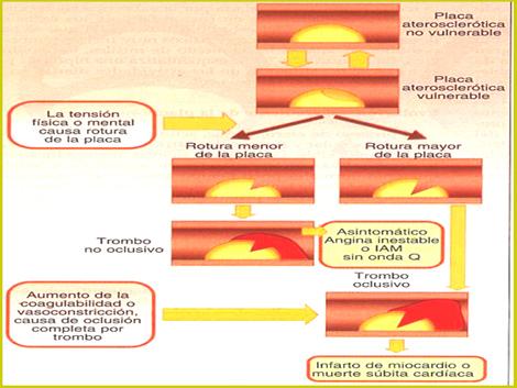 sindrome_coronario_agudo/placa_aterosclerotica