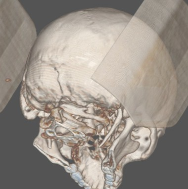 sindrome_eagle_caso/TAC_reconstruccion_3D