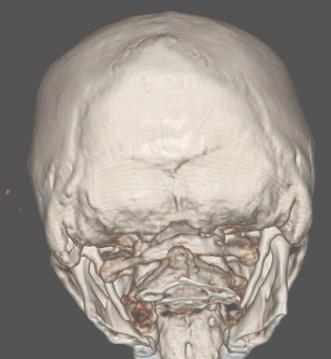 sindrome_eagle_caso/clinico_TAC_tomografia