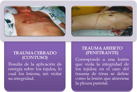 trauma_torax_toracico/trauma_toracico_1