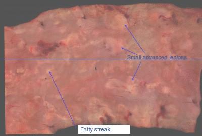modelo_animal_arteriosclerosis/aorta_humana_aterosclerotica