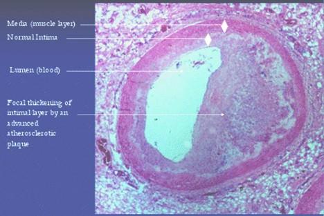 modelo_animal_arteriosclerosis/arteria_coronaria_aterosclerotica