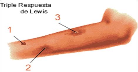 autacoides_respuesta_inflamatoria/triple_respuesta_lewis