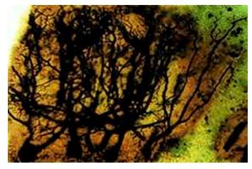 historia_sinapsis_neuronal/celulas_purkinje_cerebelo