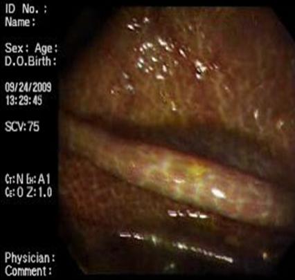 melanosis_coli_laxantes/mucosa_colonica_7