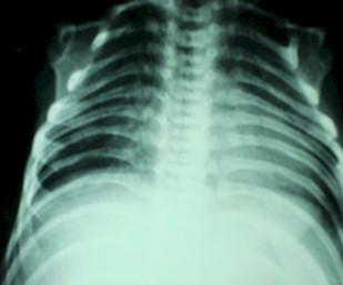 sindrome_Werdnig_Hoffmann/neumonia_basal_broncograma