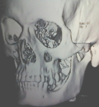 aneurisma_perioftalmico_postraumatico/tomografia_craneo_tridimensional