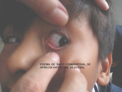 conjuntivitis_alergica_infantil/edema_saco_conjuntival