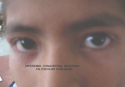 conjuntivitis_alergica_infantil/hiperemia_conjuntival_bilateral