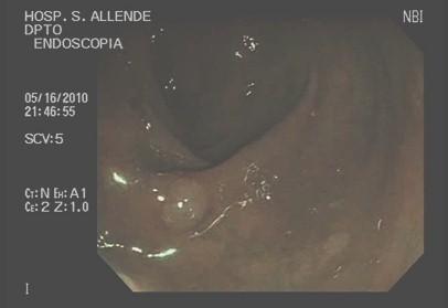 cromoendoscopia_colon_lesiones/colonoscopia_digestiva_NBI