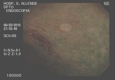 cromoendoscopia_colon_lesiones/lesion_plana_colon