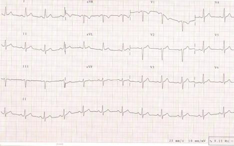 manejo_dolor_toracico/ECG_electrocardiograma_miocarditis