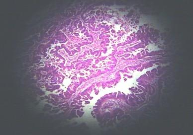 tumor_Krukenberg_cancer/adenocarcinoma_papilar_vesicula