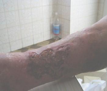 ulceras_vendaje_multicapa/evolucion_ulcera_vascular