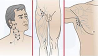 adenopatias_atencion_primaria/ganglios_abdominales_cervicales