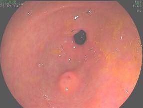 pancreas_aberrante_caso/clinico_heterotopia_pancreatica