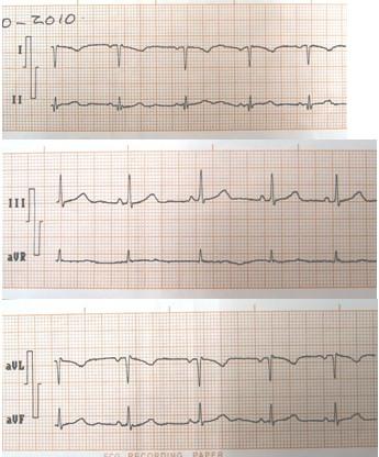 situs_inversus_caso/ECG_EKG_electrocardiograma