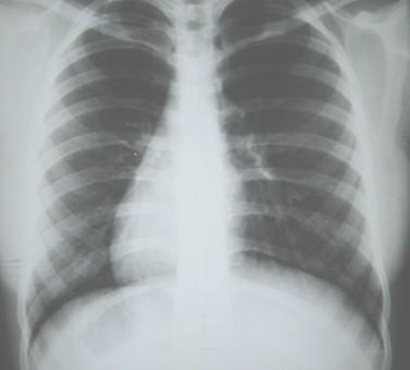 situs_inversus_caso/clinico_radiografia_torax