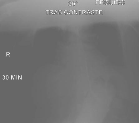 volvulo_gastrico_agudo/transito_gastroduodenal_contraste